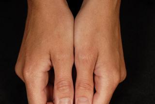eczema and treatment
