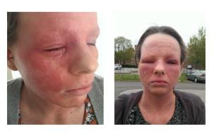 Jenny on Eczema Herpeticum