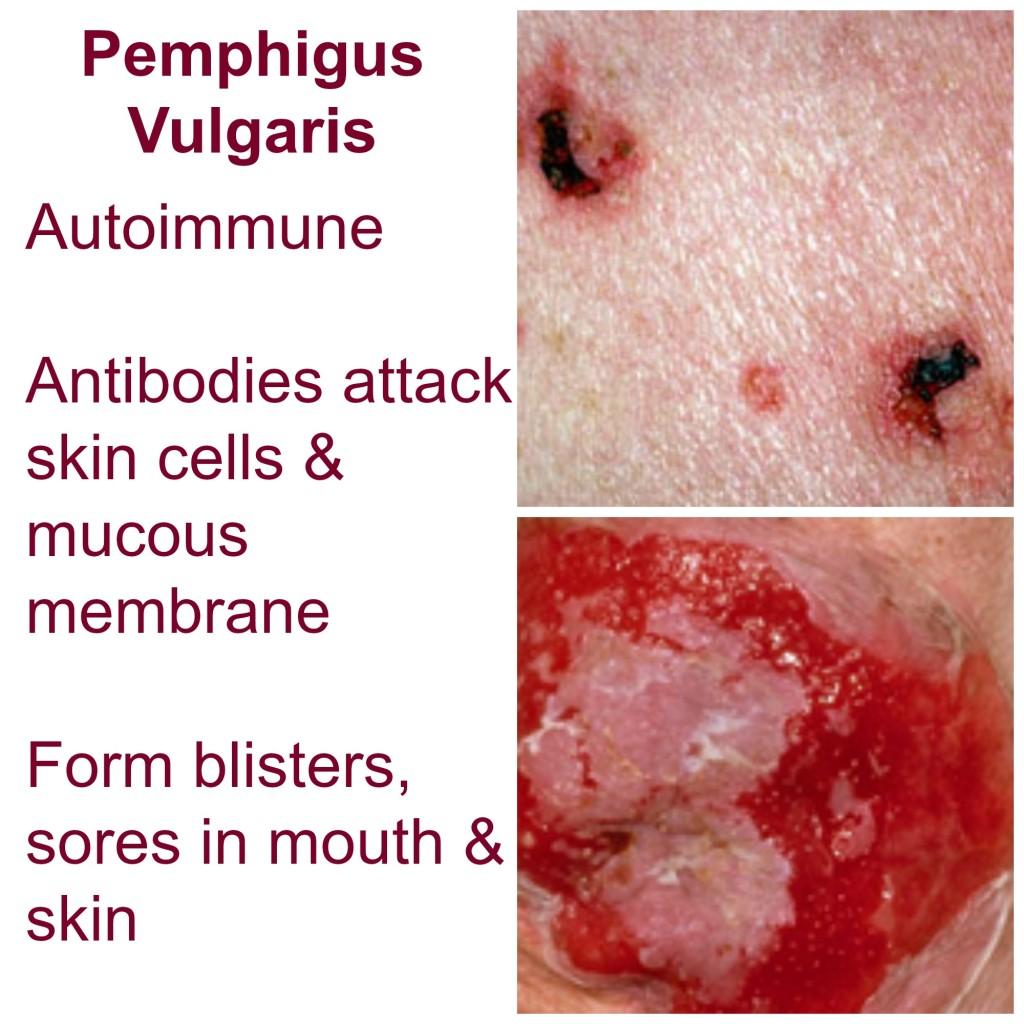 Pemphigus vulgaris eczema