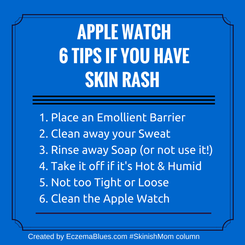 Skin Irritation and Apple Watch - Top 6 Tips to Limit Skin Rash