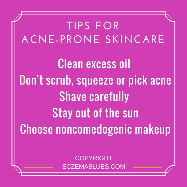 Tips for Caring for Acne Prone Skin